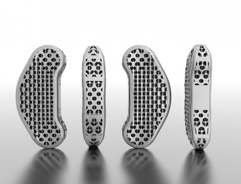 Rendering of titanium spinal implants laser-sintered with EOS direct metal laser-sintering (DMLS). The pores in the implants, created with software from WITHIN Technologies, reduce weight and promote osseointegration. (Courtesy of WITHIN Technologies)